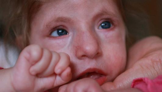 Padła ofiarą lekarskiej pomyłki. Każdy może pomóc małej Hani
