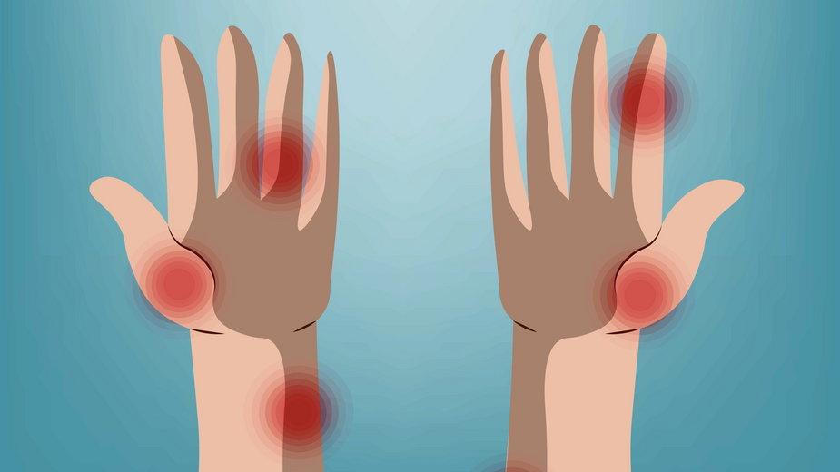 Co dłonie mówią o zdrowiu?