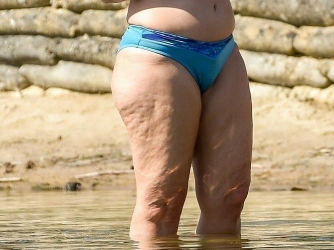 Nijedna žena ne želi da ovog leta na plaži IZGLEDA OVAKO: Zato napadnite celulit odmah NOVOM HIT METODOM