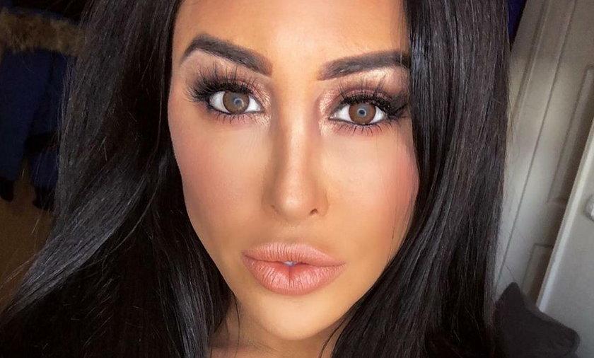34-letnia Laura-Alicia Summer przeszła 50 operacji plastycznych