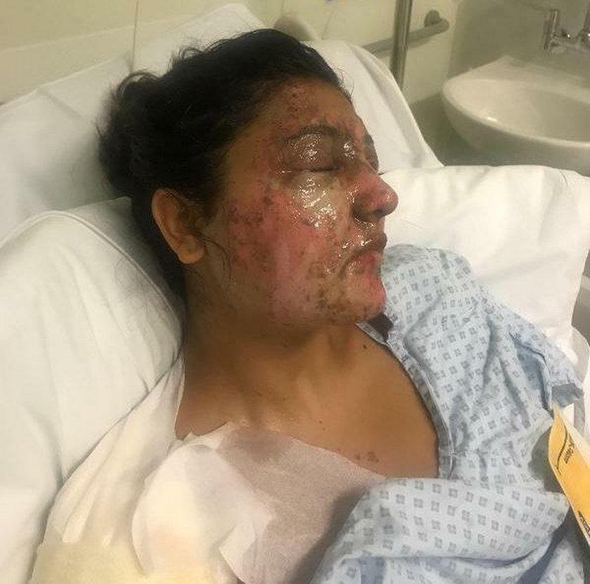 Przerażający atak w Londynie. Oblał kwasem 21-latkę i jej kuzyna