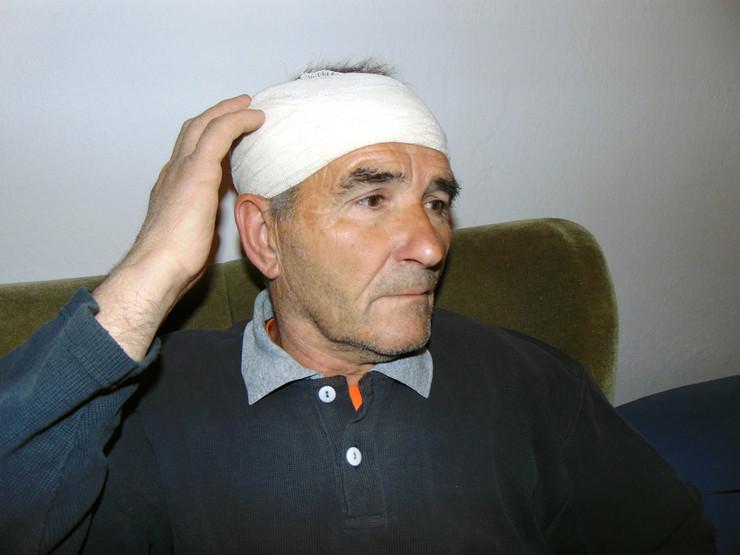 NIS22 Slavoljub Pavlovic won three leaves on the right side of & nbsp; the skull photo Branko Janackovic