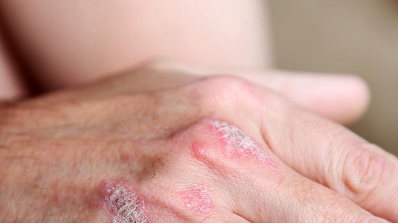 Z robakami pod skórą