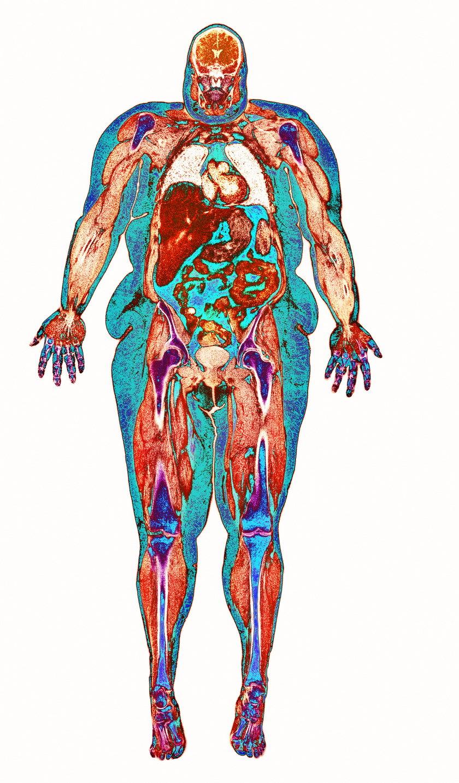 Tkanka tłuszczowa działa niszcząco na cały organizm