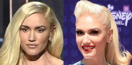 Co się dzieje z twarzą Gwen Stefani?