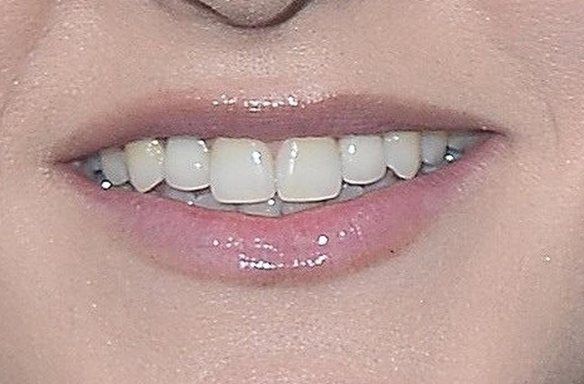 Zęby Agnieszki Chylińskiej