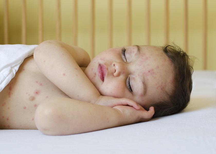 Coraz więcej chorych na choroby zakaźne