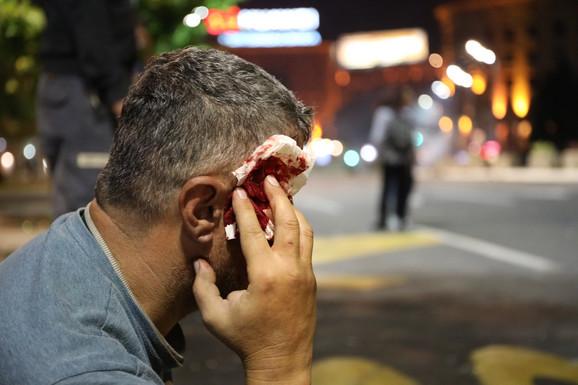 Jedan od građana zadobio je udarce po glavi
