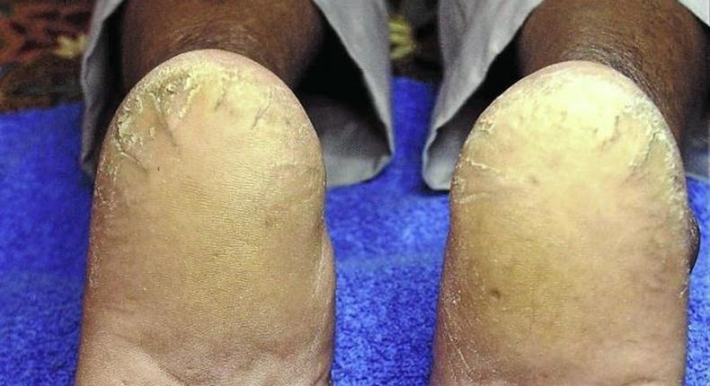 Cracked heels (Star)