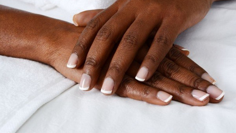 Dark Knuckles: 1 fast, natural way to lighten discoloured