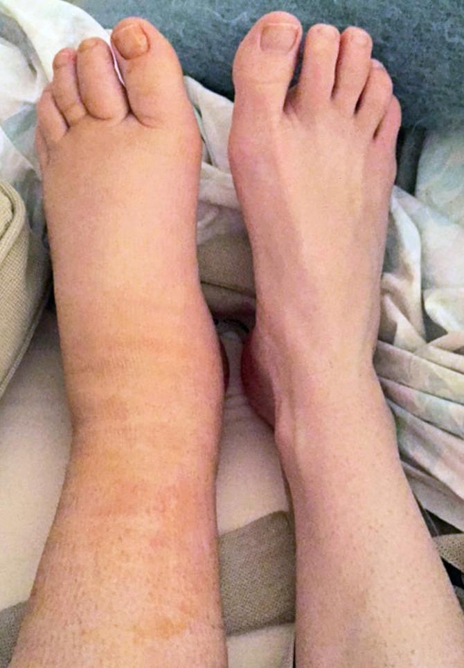 Fotografija najbolje pokazuje sa kakvom se bolešću bori Sara