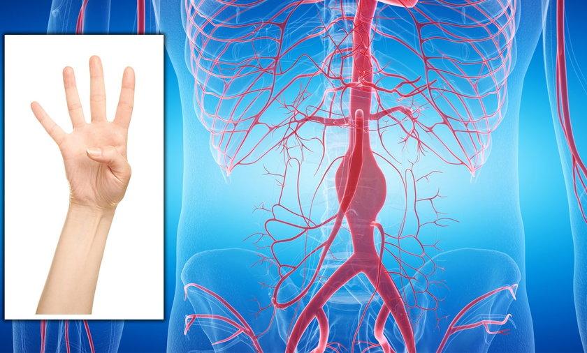 Prosty test kciuka może cię uchronić przed tętniakiem aorty.
