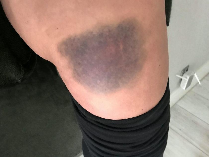 Ofiara bicia pokazała zdjęcia obrażeń. Zrobił jej to mąż bisznesmen