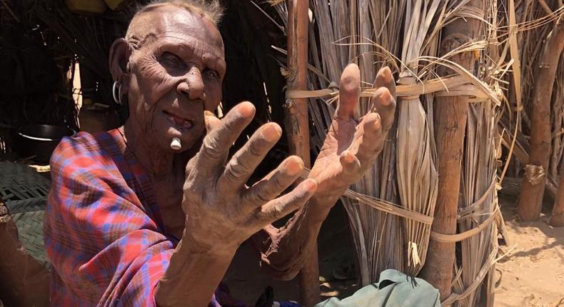 Photo Courtesy of Roncliff Odit/BBC Swahili