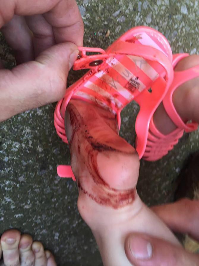 Devojčica je zadobila povrede nakon samo 30 minuta