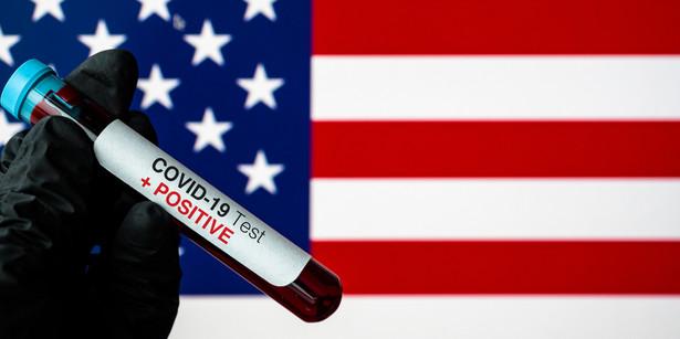 To kolejny tragiczny dzień w USA. W piątek wieczorem czasu miejscowego raport informował o 1169 zgonach i był to pierwszy raz od początku epidemii koronawirusa, gdy dzienna ilość ofiar śmiertelnych choroby Covid-19 przekroczyła tysiąc.