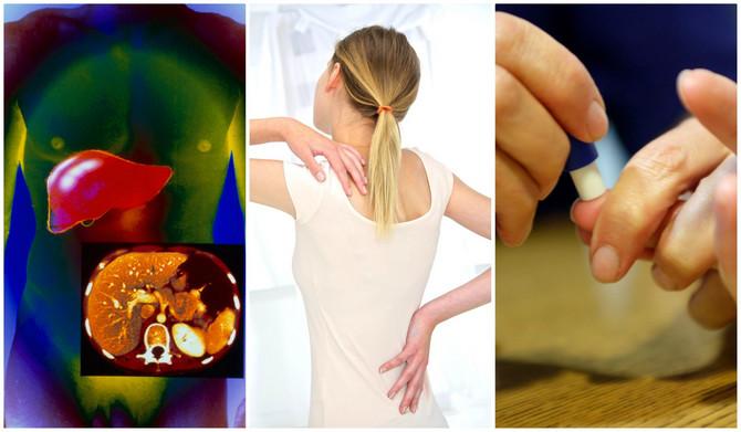 Ako se ova tri simptoma pojave istovremeno, bolest bi mogla da se zakomplikuje