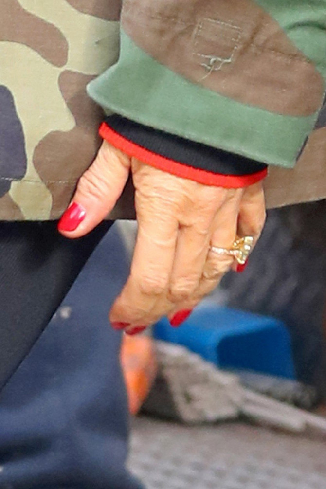 Nikada ne biste rekli da njene ruke izgledaju ovako
