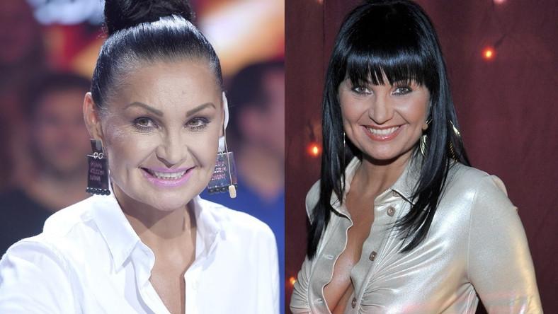 Mimo że wkrótce skończy 52 lata, wciąż wygląda bardzo atrakcyjnie. Widać jednak, że jej twarz przez kilka ostatnich lat trochę się zmieniła...