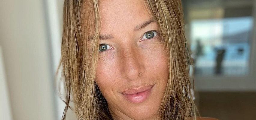 Ewa Chodakowska pokazała swoje blizny i wyznała, przez co przeszła: Rozprułam sobie twarz