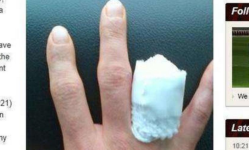 Amerykański motocyklista dał sobie uciąć palec, byle móc się ścigać
