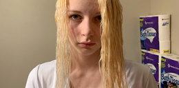 Chciała zaoszczędzić na fryzjerze. Skończyło się katastrofą