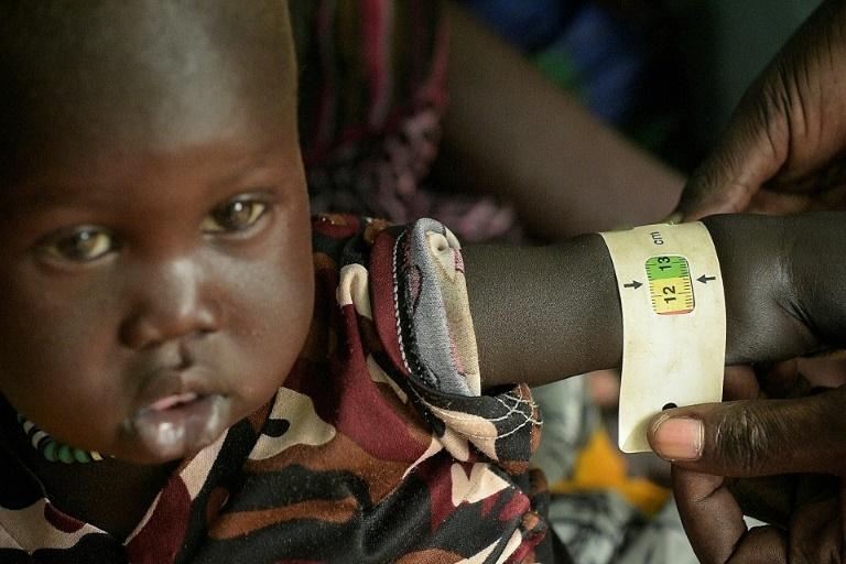 A boy child is measured as he receives treatment at the Udier primary health and care center supported by the International Committee of the Red Cross (ICRC)