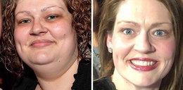 Ważyła 170 kg. Dietetyk kazał jej zrobić trzy proste rzeczy. Dziś jest nie do poznania