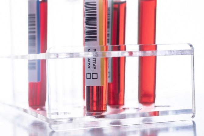 Krvne grupe utiču na koronu
