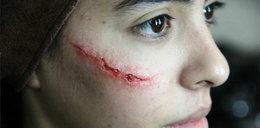 Szaleniec oszpecił jej twarz. Przerażające zdjęcia!