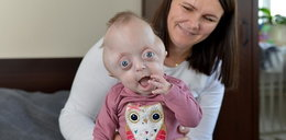 Haneczka cierpi na rzadką chorobę. Dziewczynka potrzebuje pomocy