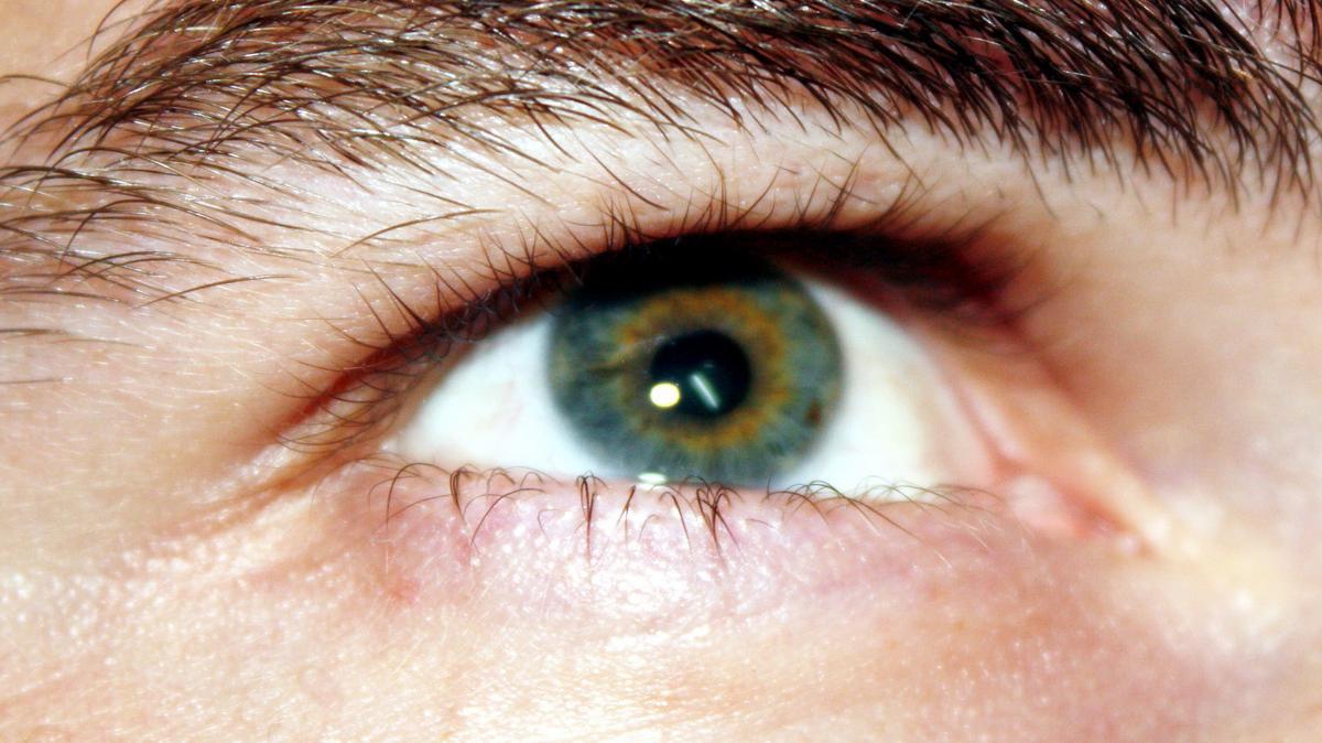 Orvosi eszköz Vizotronic - Szemüveg August Rövidlátás kezelő eszköz