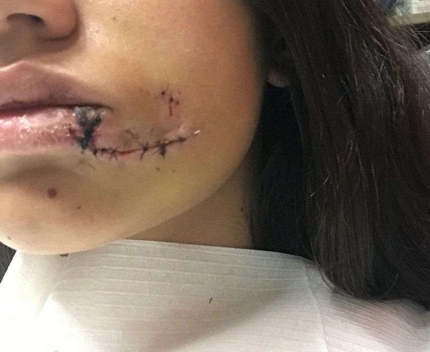 Argentyna. Pies ugryzł 17-latkę w twarz podczas sesji