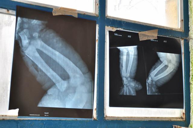 Bolest je ustanovljena i rendgenskim snimkom