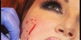 Grycanka z plamami krwi na twarzy