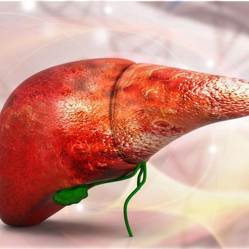 Torbiel na wątrobie – jak leczyć chorobę? | HelloZdrowie