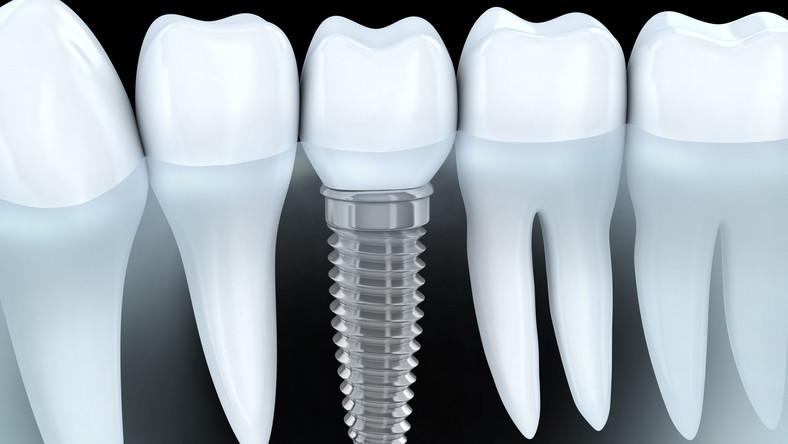 """Mit. Jeśli chcesz, aby zęby na implantach służyły Ci wiele lat, dbaj o nie! Korony z implantami, tak samo jak własne zęby, wymagają regularnej higieny – szczotkowania oraz nitkowania. Co prawda ubytki w koronach nam nie grożą, bo większość z nich wykonana jest z ceramiki, która nie podlega próchnicy. Błędna jest jednak teoria, że przy implantach nie grożą nam dolegliwości zębowe i nie musimy odwiedzać dentysty. Przy niewłaściwych nawykach może rozwinąć się np. periimplantitis. – Jest to schorzenie podobne do paradontozy i objawia się zapaleniem tkanek wokół implantu. Główne przyczyny schorzenia to nieodpowiednia higiena jamy ustnej, stres, czynniki genetyczne, palenie papierosów, choroba okluzyjna zębów, a także choroby współistniejące np. cukrzyca, które mogą zaburzać proces gojenia, a co za tym idzie skutkować niepowodzeniem zabiegu. Co więcej, jeśli implant sąsiaduje z zębami, które toczy stan zapalny, to mogą one doprowadzić do infekcji zdrowej tkanki. O odbudowane na implantach zęby trzeba dbać, jak o swoje własne, w przeciwnym wypadku implant może nie zintegrować się dobrze z kością i wypaść – przestrzega lek. stom. Przemysław Stankowski, autor poradnika """"Bądź bystry u dentysty"""""""
