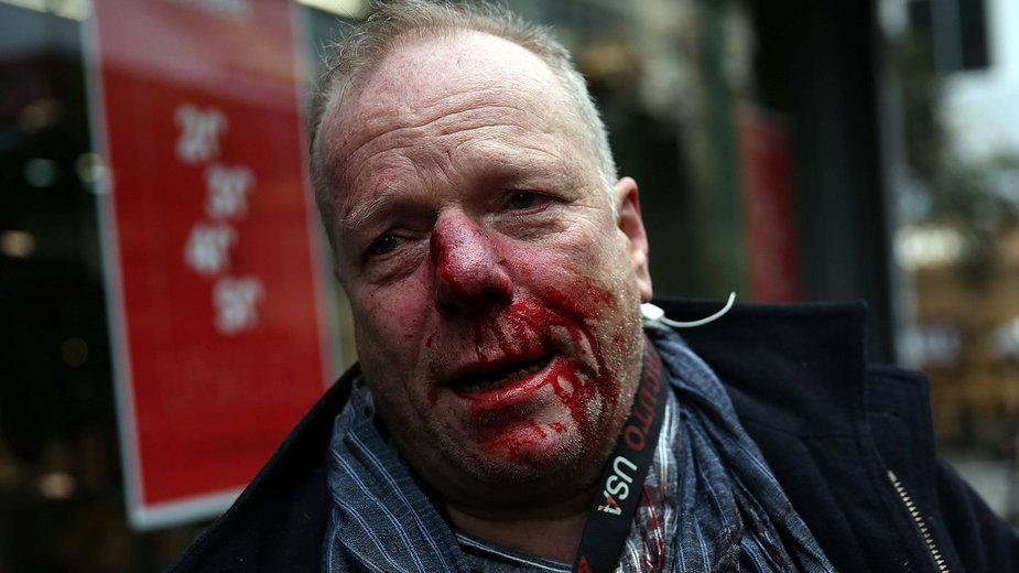 Dziennikarz pobity podczas demonstracji nacjonalistów w Grecji
