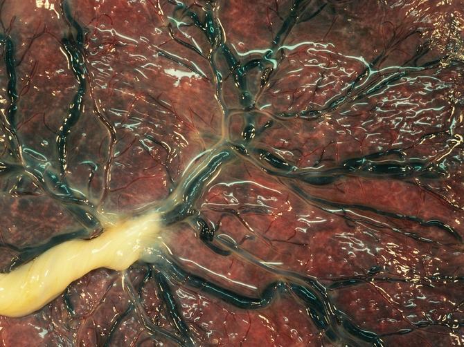 Doktori UPOZORAVAJU: Ne jedite ovaj DEO SVOG TELA!
