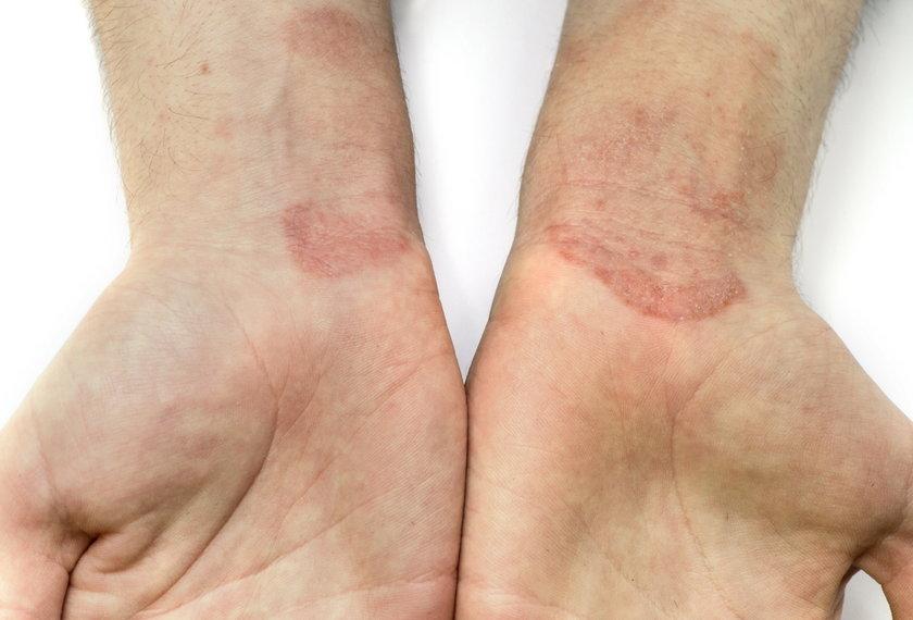 Kontaktowe zapalenie skóry