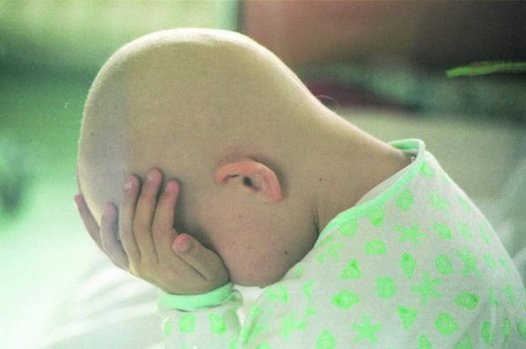leukemija deca