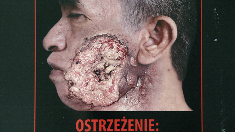 Z okazji Światowego Dnia Bez Tytoniu ministerstwo zdrowia zorganizowało wystawę grafik, jakie w różnych krajach straszą z paczek papierosów