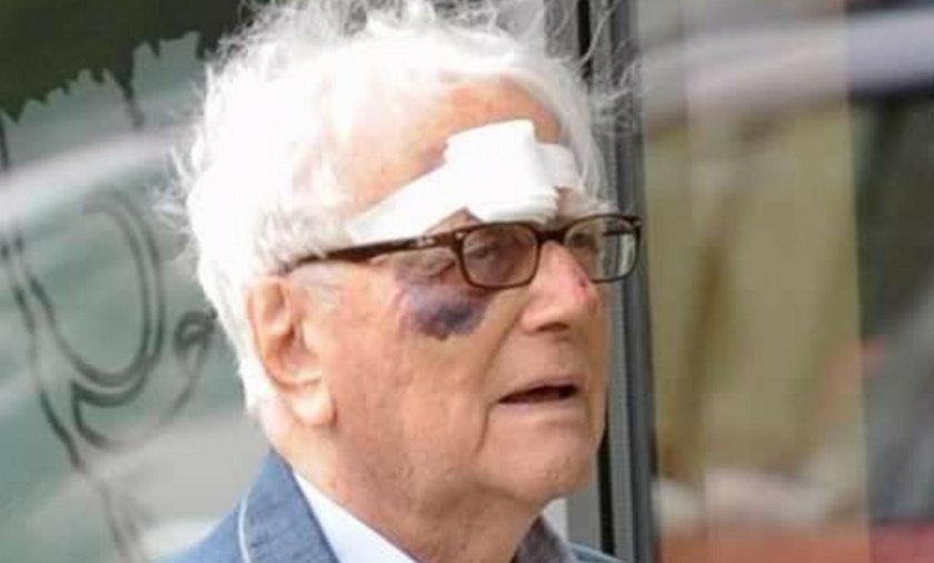 Łapickiemu oko podbił... FOTO