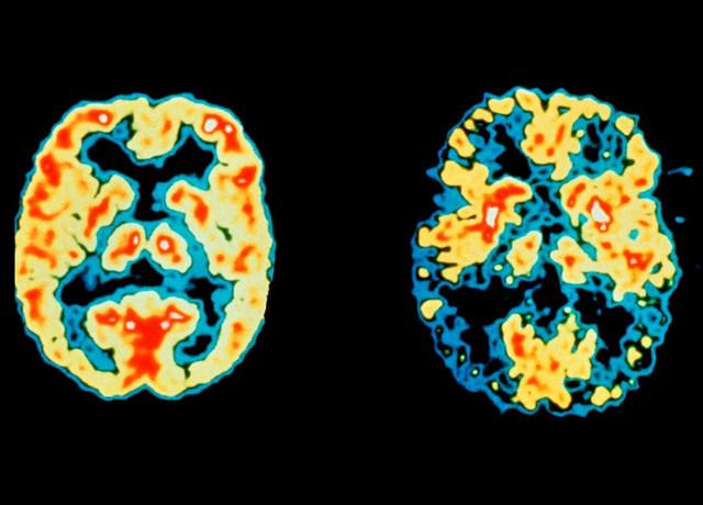 Normalan i mozak oboleo od Alchajmera