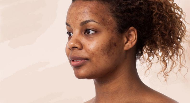 Woman with acne(Well+Good)