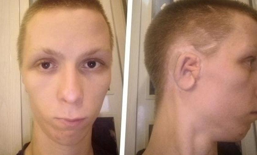 Kamil Stawiarz jedzie na operację ucha!