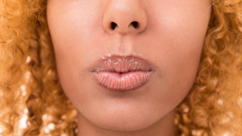 Herpes 5 things to know about venereal disease [ARTICLE