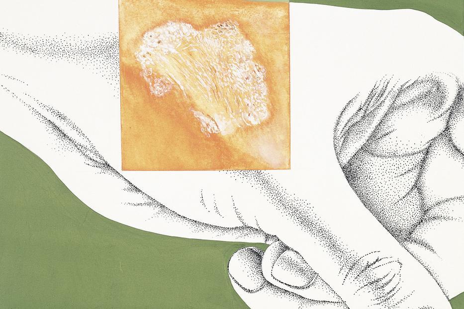 algás helminták kezelése vastagbélrák 80 év után