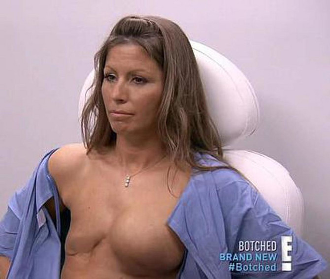 Ostala je bez leve dojke
