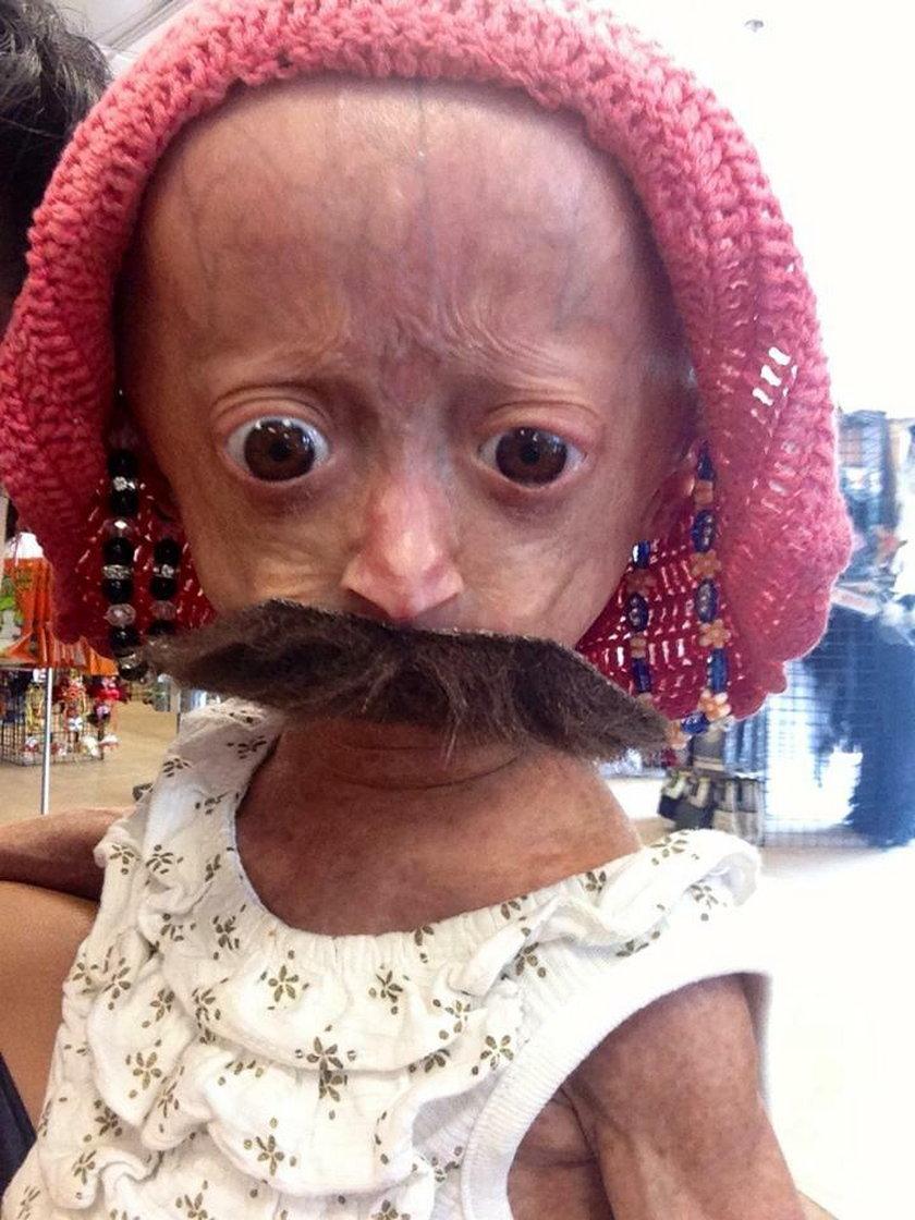 Adalia choruje na progerię